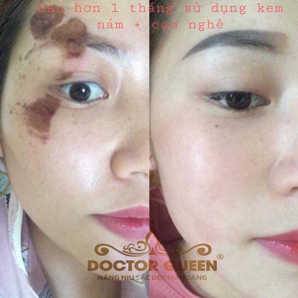 Cao tinh bột nghệ Doctor Queen